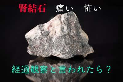 結石のイメージ画像石